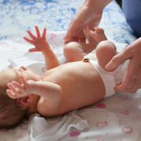 Apakah Perlu Hernia pada Bayi Dioperasi?