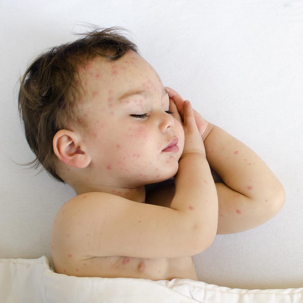 Pengobatan Vitiligo pada Anak