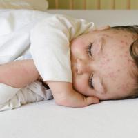 Sebab-Sebab Anak Alami Vitiligo