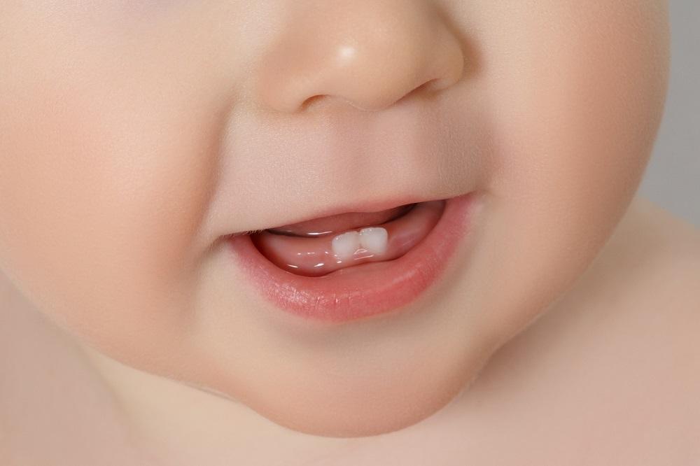 Giginya Mulai Tumbuh! Ini Dia Beberapa Tips untuk Meringankan Nyerinya!