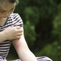 Cara Pintar Memilih Lotion Anti Nyamuk Si Kecil